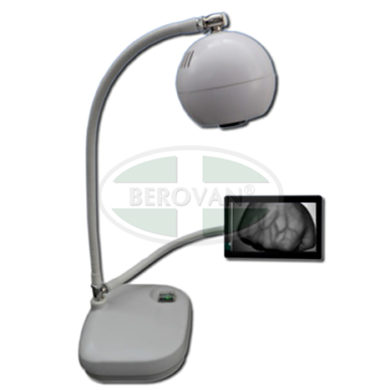 MS Vein Viewer BM1000